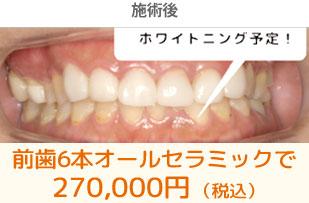 sinryo_ceramic-img03-after
